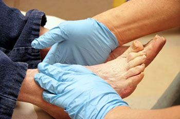 Diabetic Foot Care High Plains Podiatry